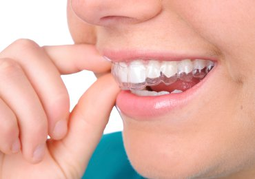 ortodonzia cagliari